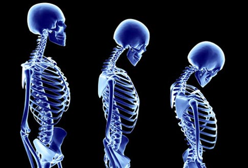 osteoporosis-posture